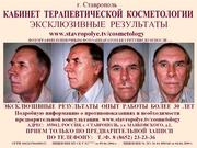 Кабинет Терапевтической Косметологии КМН